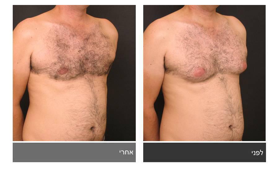 גניקומסטיה - תמונות לפני ואחרי 3