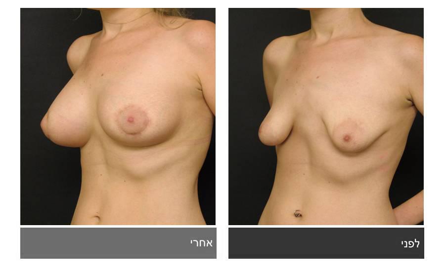 ניתוח חזה טובולרי - תמונות לפני ואחרי 2