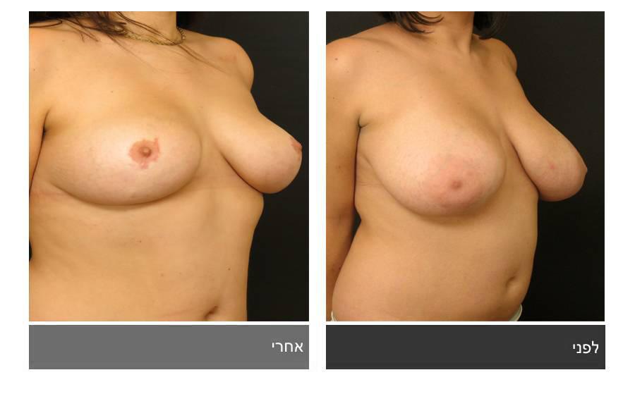ניתוח הקטנת חזה - לפני ואחרי 3