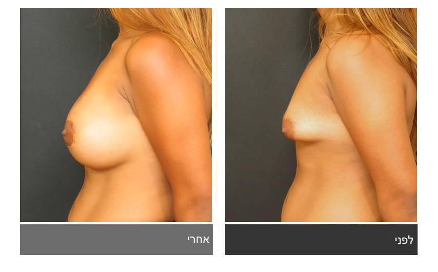 ניתוח חזה טובולרי - תמונות לפני ואחרי 3