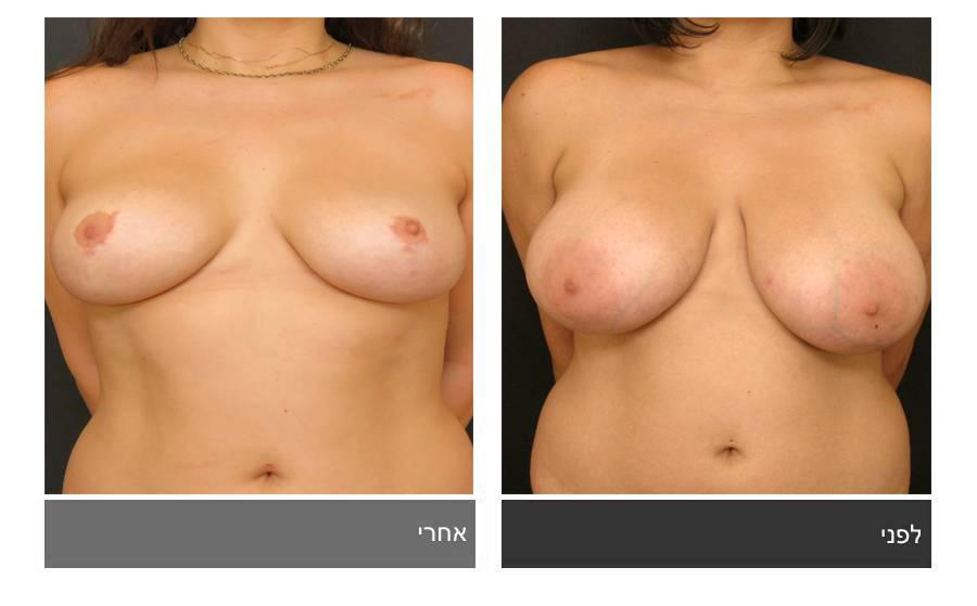 ניתוח הקטנת חזה - לפני ואחרי 4
