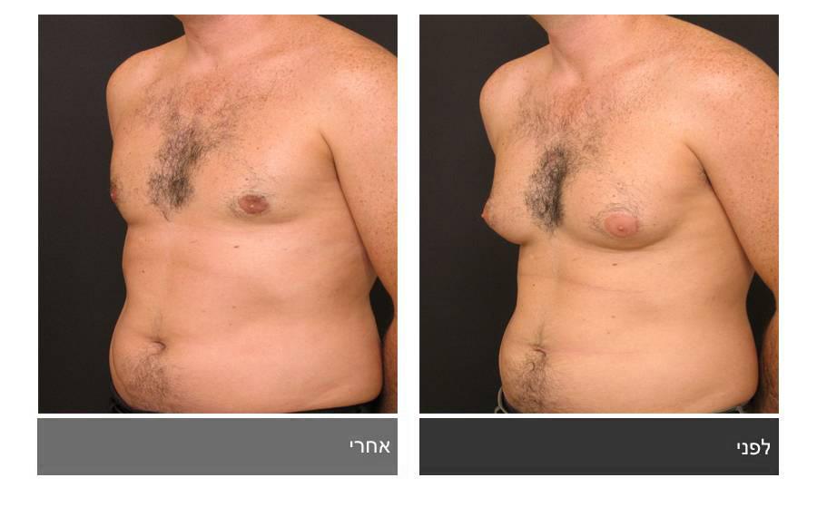 גניקומסטיה - תמונות לפני ואחרי 4