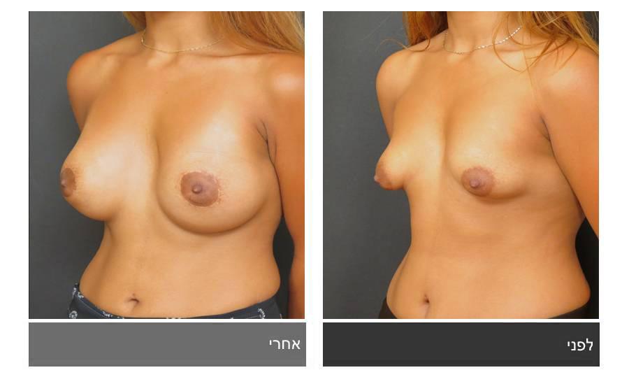 ניתוח חזה טובולרי - תמונות לפני ואחרי 4