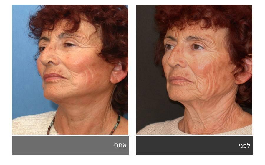 מתיחת פנים - תמונות לפני ואחרי 3