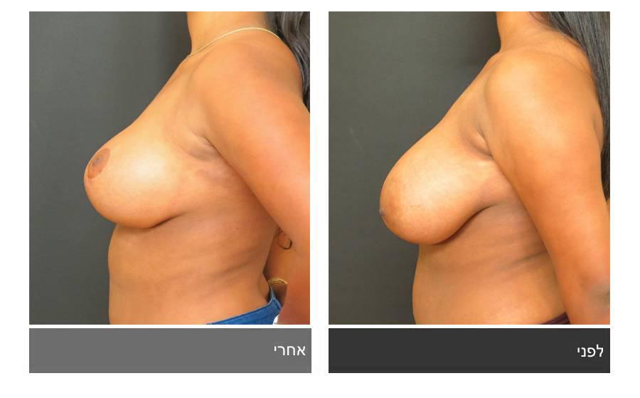 ניתוח הקטנת חזה - לפני ואחרי 5