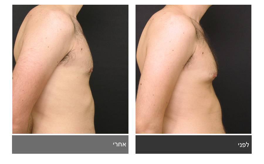 גניקומסטיה - תמונות לפני ואחרי 5