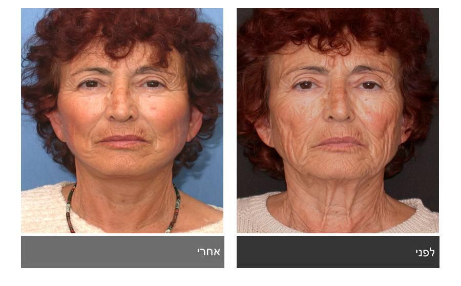 מתיחת פנים - תמונות לפני ואחרי 4