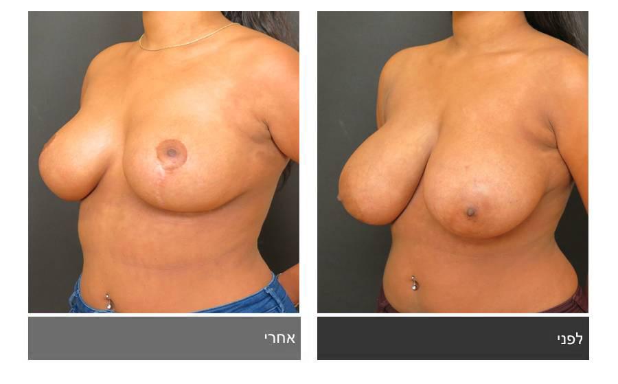 ניתוח הקטנת חזה - לפני ואחרי 6