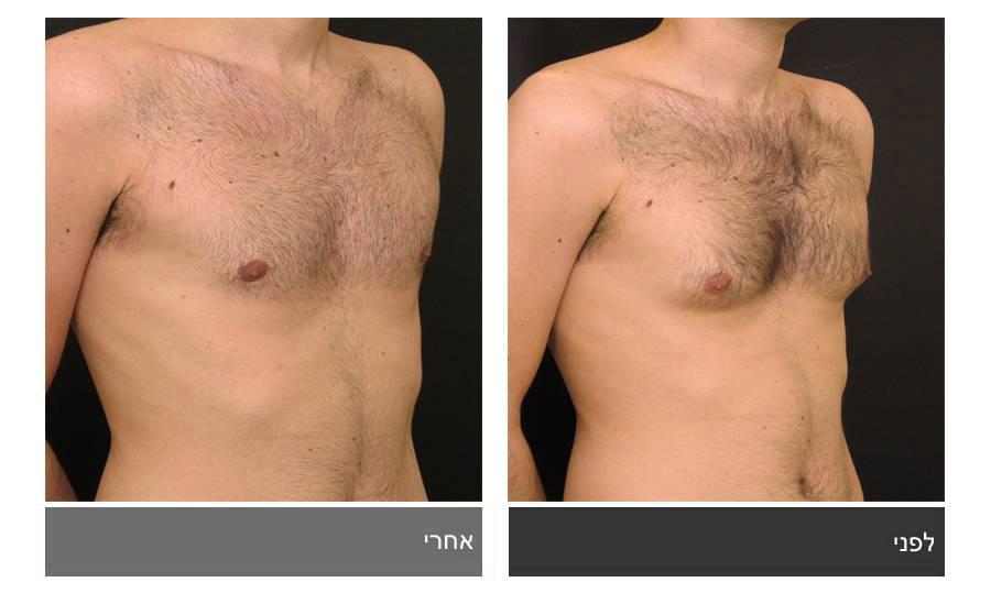 גניקומסטיה - תמונות לפני ואחרי 6