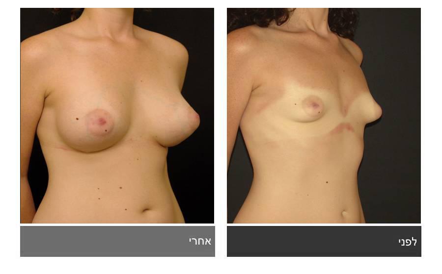 ניתוח חזה טובולרי - תמונות לפני ואחרי 6