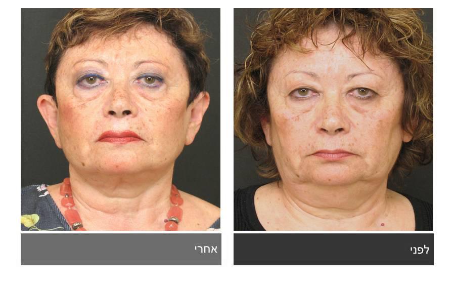 מתיחת פנים - תמונות לפני ואחרי 5