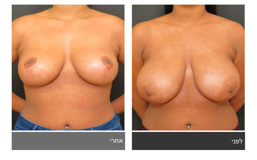 ניתוח הקטנת חזה - לפני ואחרי 7