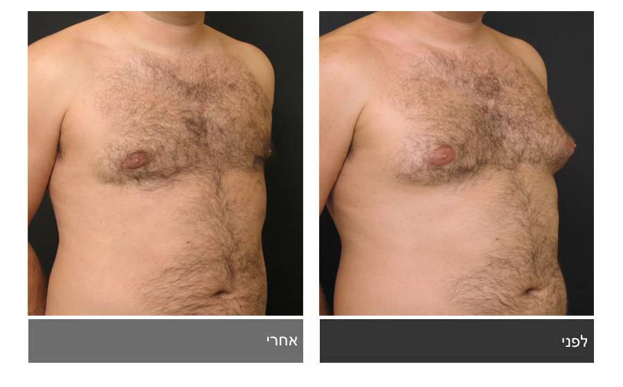 גניקומסטיה - תמונות לפני ואחרי 7