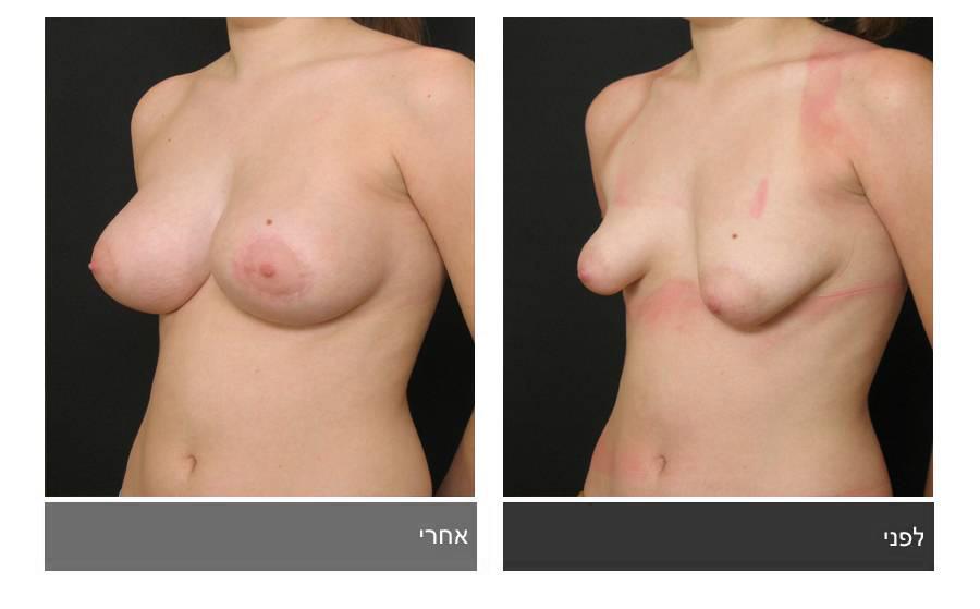 ניתוח חזה טובולרי - תמונות לפני ואחרי 7