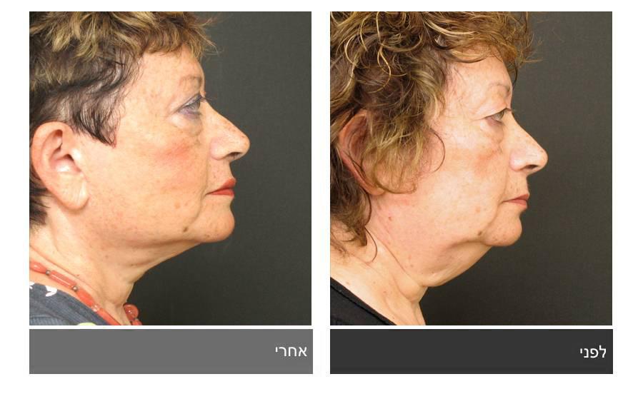 מתיחת פנים - תמונות לפני ואחרי 6
