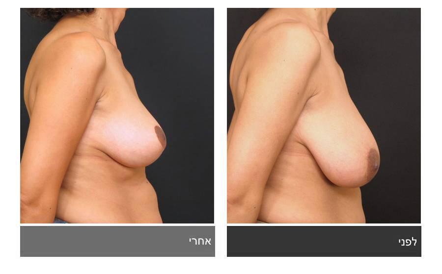 ניתוח הקטנת חזה - לפני ואחרי 8
