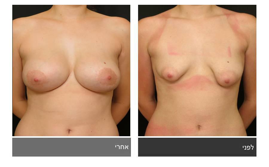 ניתוח חזה טובולרי - תמונות לפני ואחרי 8