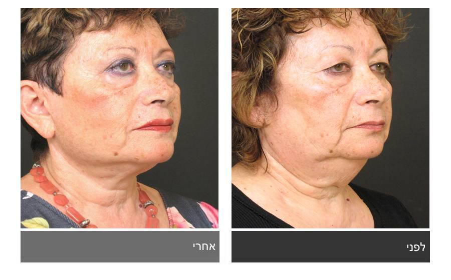 מתיחת פנים - תמונות לפני ואחרי 7
