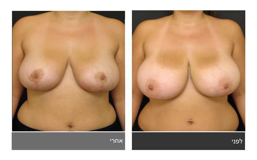 ניתוח הקטנת חזה - לפני ואחרי 24