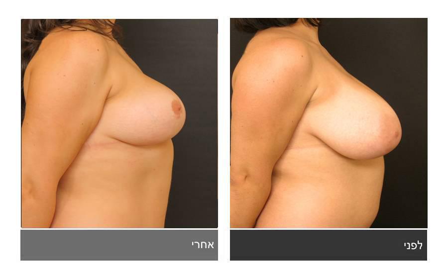 ניתוח הקטנת חזה - לפני ואחרי 23