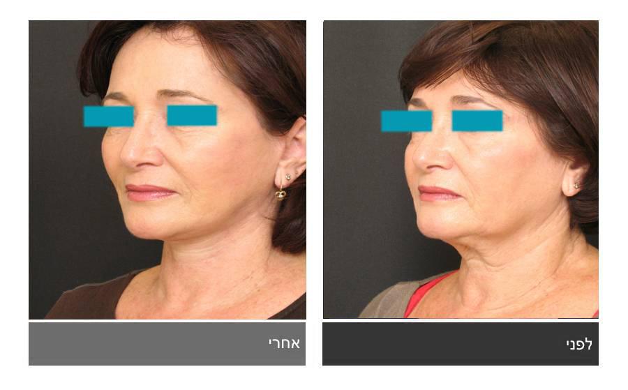 מתיחת פנים - תמונות לפני ואחרי 23