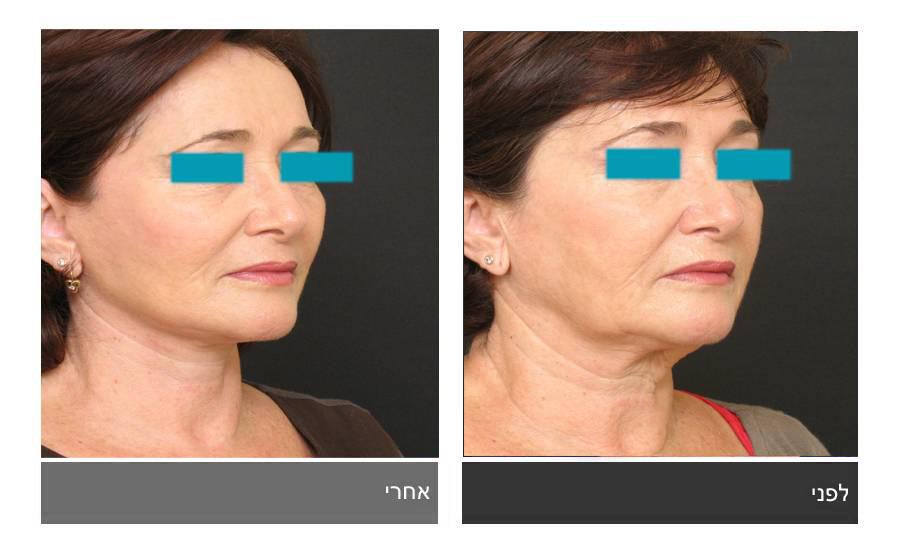 מתיחת פנים - תמונות לפני ואחרי 24