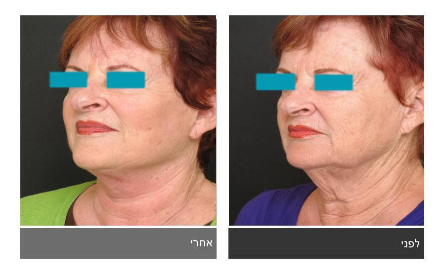מתיחת פנים - תמונות לפני ואחרי 21