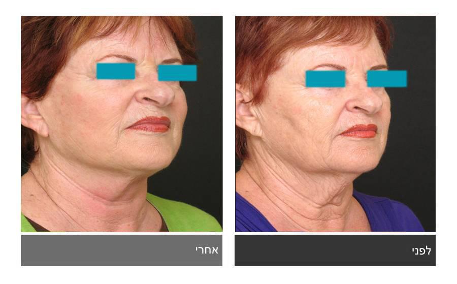 מתיחת פנים - תמונות לפני ואחרי 22