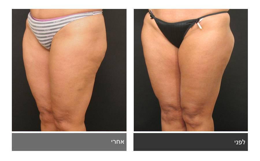 שאיבת שומן - תמונות לפני ואחרי 1
