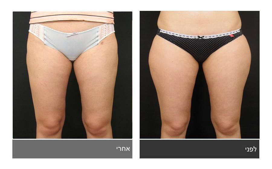 שאיבת שומן - תמונות לפני ואחרי 9