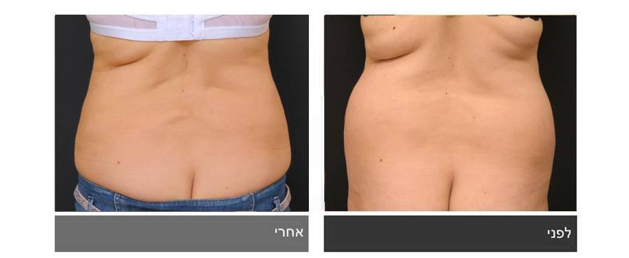 שאיבת שומן - תמונות לפני ואחרי 2