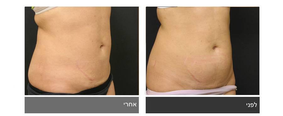 שאיבת שומן - תמונות לפני ואחרי 3
