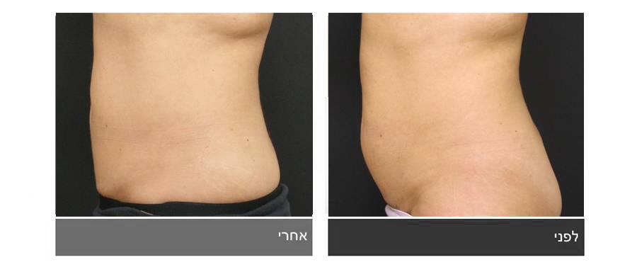 שאיבת שומן - תמונות לפני ואחרי 4