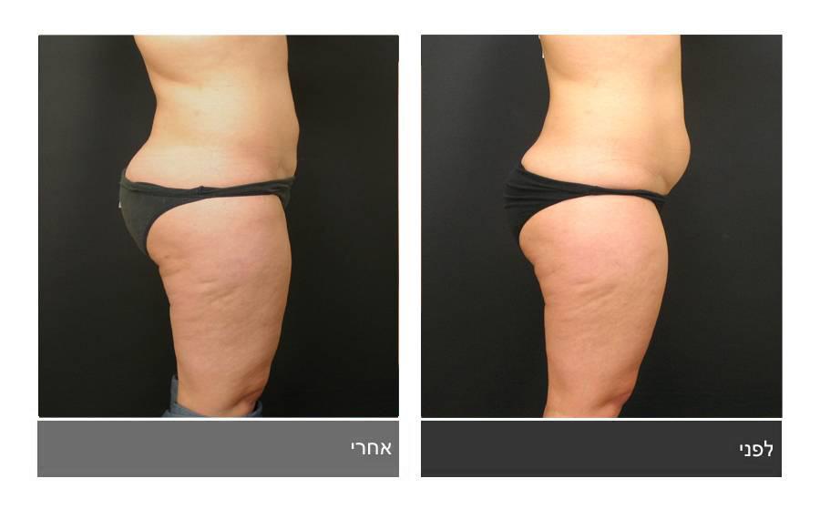 שאיבת שומן - תמונות לפני ואחרי 6
