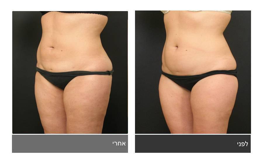 שאיבת שומן - תמונות לפני ואחרי 7