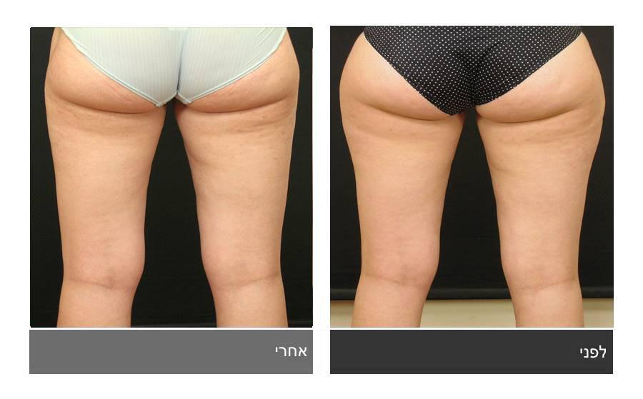 שאיבת שומן - תמונות לפני ואחרי 8