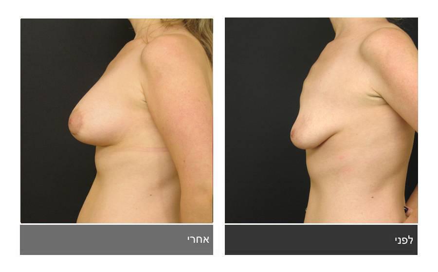 ניתוח חזה טובולרי - תמונות לפני ואחרי 13