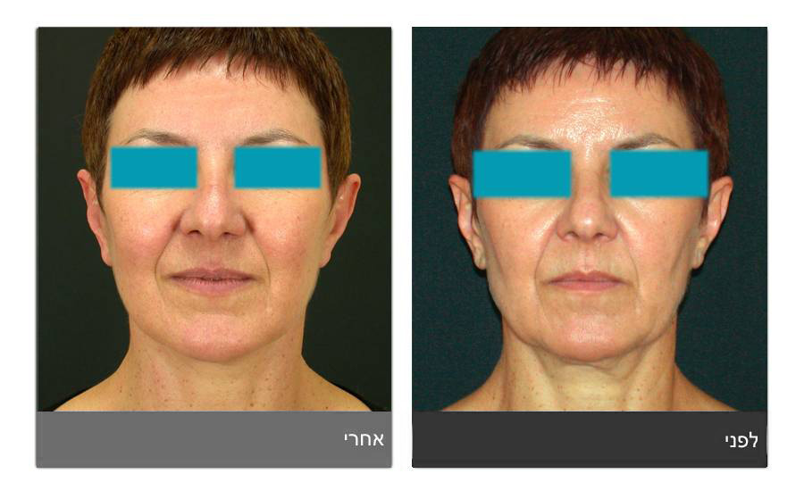מתיחת פנים - תמונות לפני ואחרי 25