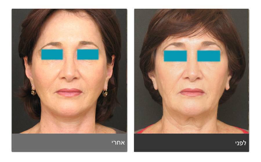 מתיחת פנים - תמונות לפני ואחרי 26