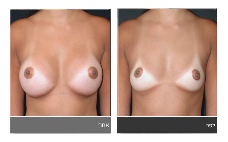 הגדלת חזה לפני ואחרי 3