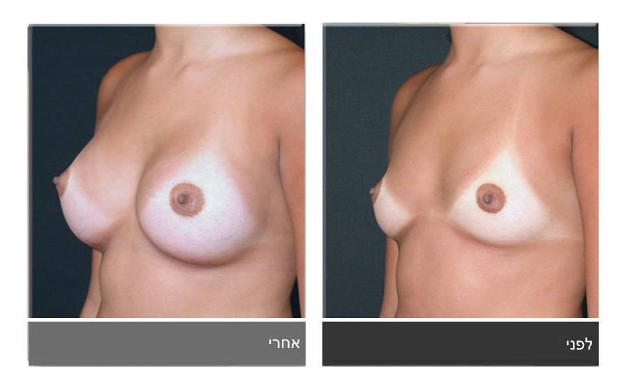 הגדלת חזה לפני ואחרי 4