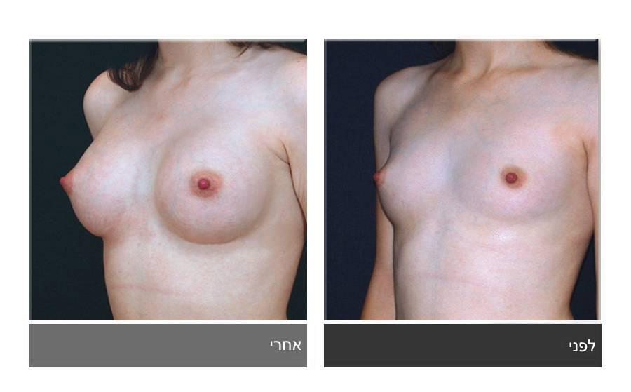 הגדלת חזה לפני ואחרי 5
