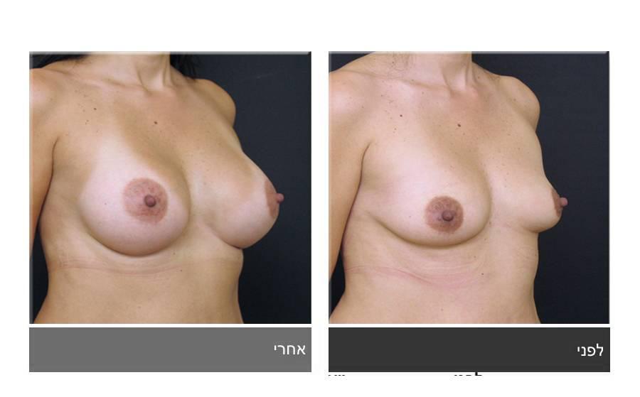 הגדלת חזה לפני ואחרי 6