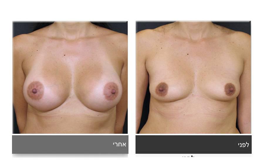 הגדלת חזה לפני ואחרי 7