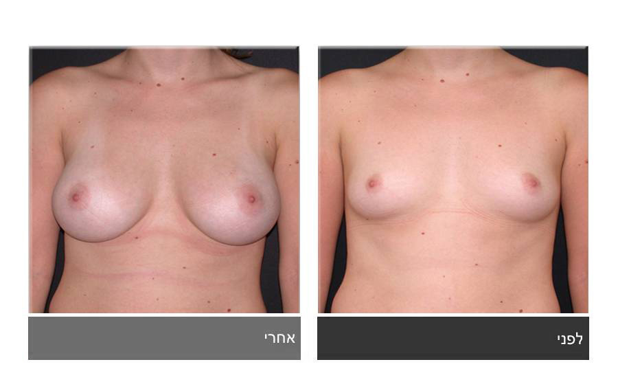 הגדלת חזה לפני ואחרי 8