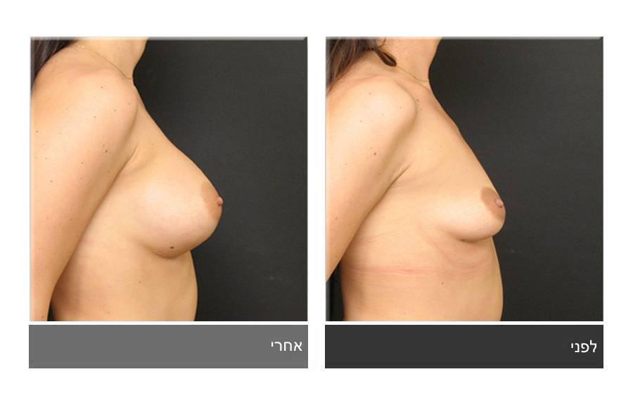 הגדלת חזה לפני ואחרי 9