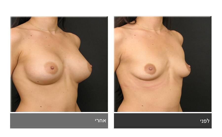 הגדלת חזה לפני ואחרי 10