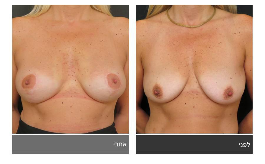 תיקון חזה לא סימטרי תמונות לפני ואחרי 9
