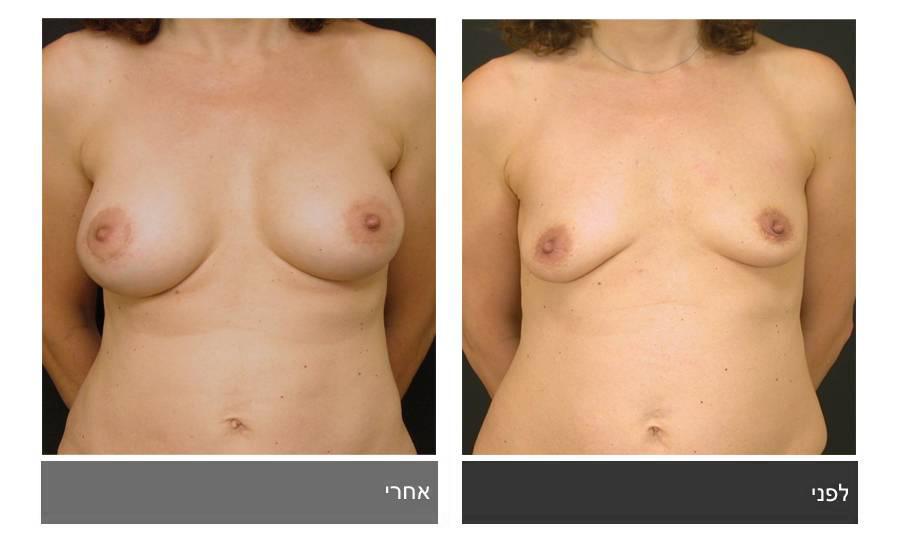 תיקון חזה לא סימטרי תמונות לפני ואחרי 1