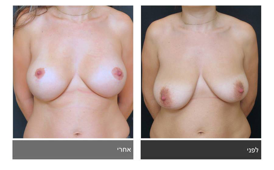 תיקון חזה לא סימטרי תמונות לפני ואחרי 2